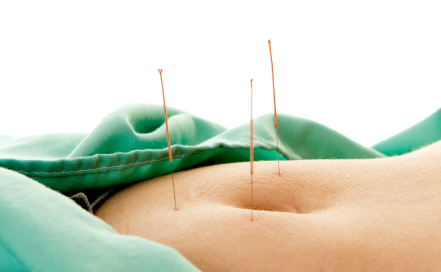 acupuncture weight loss-foto